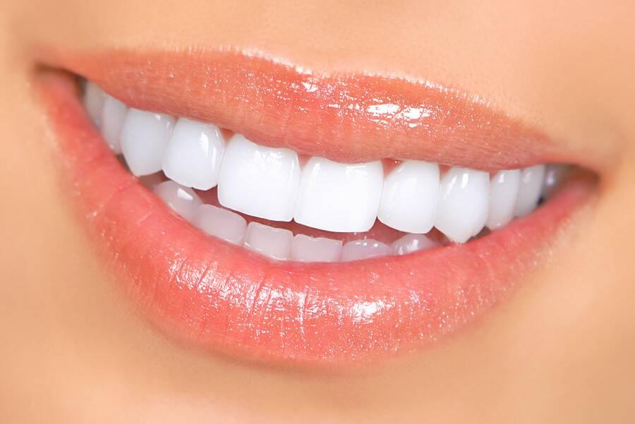 ¿Blanqueamiento dental en casa?
